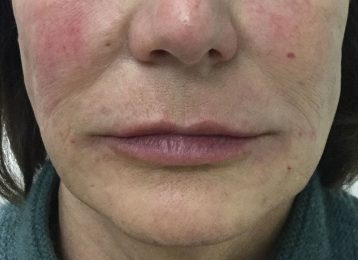 Juvederm Smile Lines Chin - After