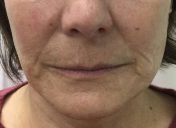 Juvederm Smile Lines Chin - Before